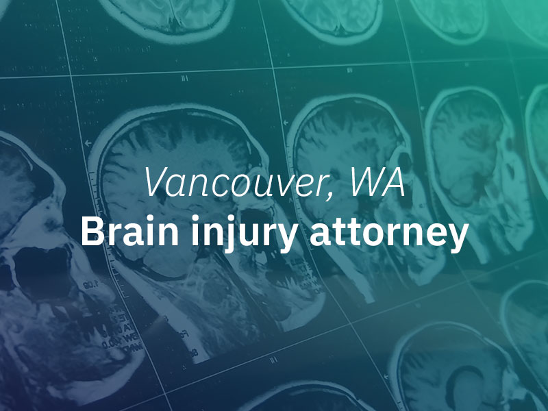 Vancouver, WA Brain Injury Attorney